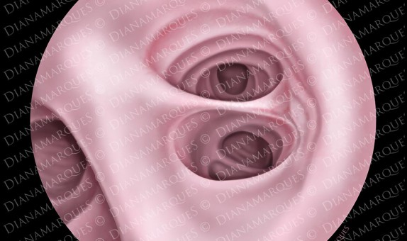 digital illustration of bronchial endoscopy