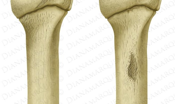 digital illustration of normal and teared humerus bones